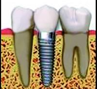 Implantes óseos de integración, novedosa técnica de dentición artificial