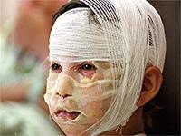 Niña de nueve años es atacada con aceite caliente  en San Mateo