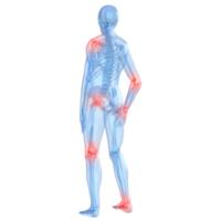 El error de los artríticos: volverse inactivos