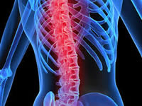 Madrid realizó campaña de  prevención de Osteoporosis