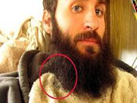 Las barbas son un cultivo de bacterias