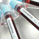 Joven de 15 años, quinto caso  de coronavirus en Soacha