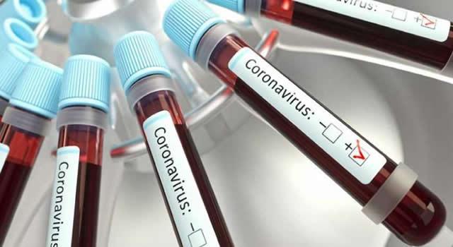 Ya son 21 los casos de coronavirus en Cundinamarca