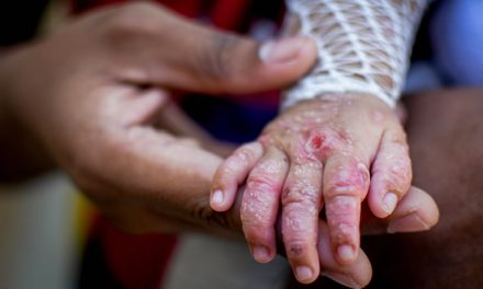 En el día de las enfermedades raras Colegio La  Despensa de Soacha da ejemplo