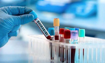 Llegaron al país 500.000 reactivos para hacer pruebas de diagnóstico del Covid-19