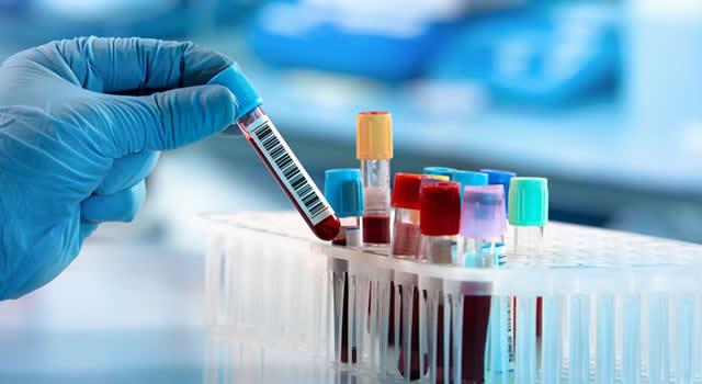 Coronavirus cobra 22 nuevas víctimas en Colombia