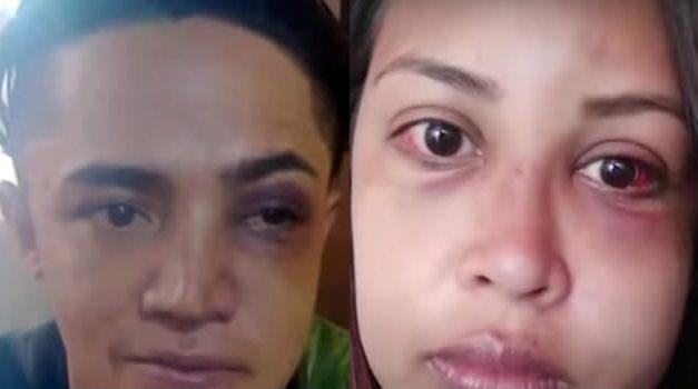 Policías de Soacha le propinan brutal golpiza a pareja de novios