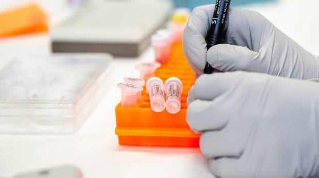 Las cifras del coronavirus en Soacha, ya son 1.383 los fallecidos